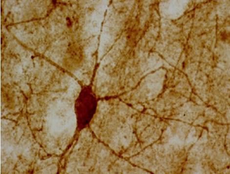 Autism Neurocircuitry Laboratory: Neurochemistry