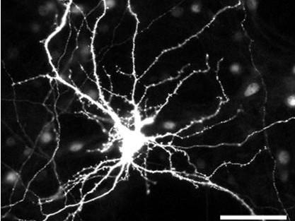 Neuronal Connectivity Laboratory: Cytoskeleton