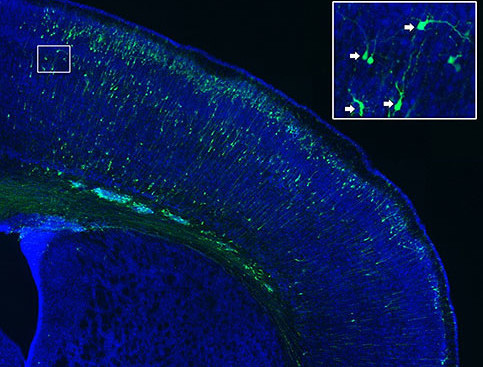 Neural Circuit Development Laboratory: Adhesion