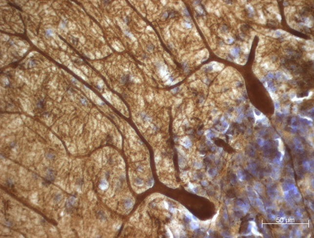 Stained Purkinje cells from Dr. Blatt's laboratory.