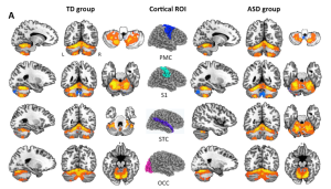 Functional cross-connections between the cerebellum and the four sensorimotor regions tested (center). TD = typically developing, ASD = autism spectrum disorder. From Khan et al 2015.